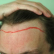 Q: Do I have a receding hairline? I'm 22 years old and think my hairline may be receding.